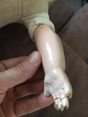 Hand/arm